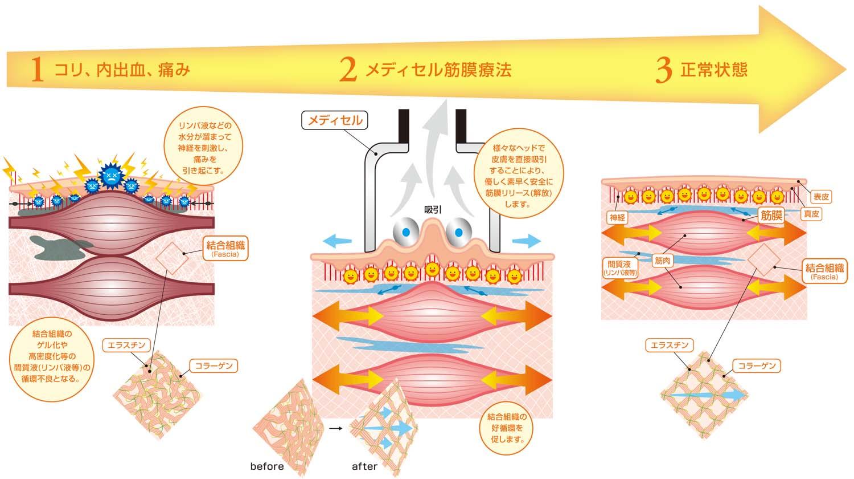 メディセル筋膜療法とは